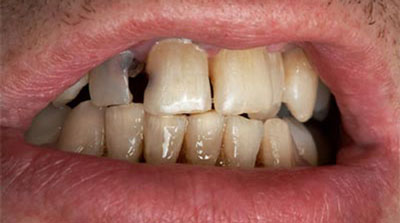 Photo of tooth decay